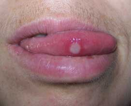 tongue-herpes