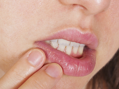 Cold Sore Herpes Infection