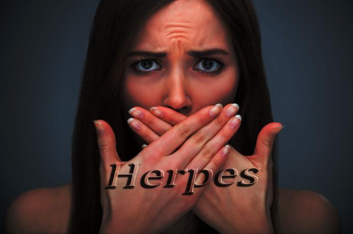 Herpes Diseases 10